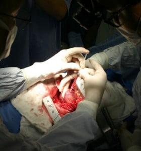 Se realizaron mil trasplantes de órganos en lo que va del año