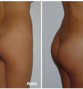 Crecieron más de 500% las cirugías estéticas
