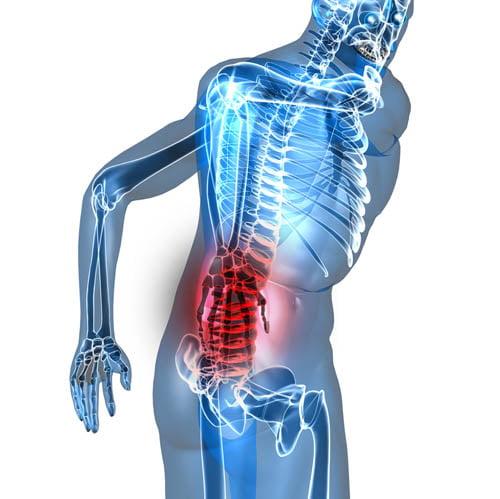 Dolores de espalda, principal causa de invalidez en el mundo