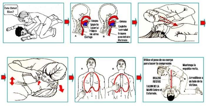 Los primeros auxilios pueden evitar 4 de 10 muertes por paro cardíaco