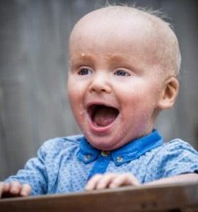 Un bebé de 18 meses tiene la piel como escamas de pescado