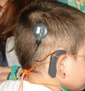 Colocan implante coclear a nena hipoacúsica en un hospital público
