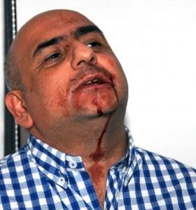 Día de Furia: De Narváez admitió haberle pegado a un periodista en La Plata