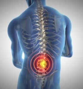 Lumbalgia prolongada podría ser una enfermedad reumatológica