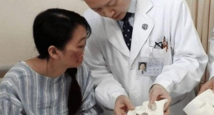 Mujer china recuperará nariz y boca gracias a impresión 3D