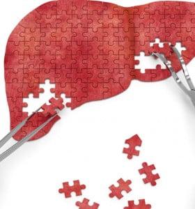 Reducen las infecciones por HIV y aumentan las Hepatitis