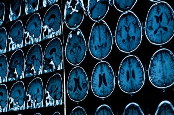 Más de 15 mil personas afectadas por Esclerosis Múltiple en Argentina