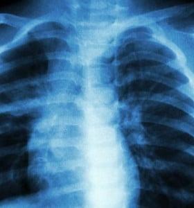 Muertes por tuberculosis descienden 37% desde 2000