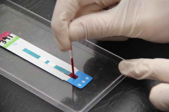 Cómo funciona el test rápido para detección de HIV
