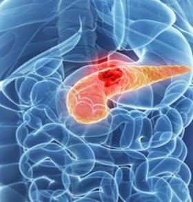Científicos argentinos desarrollaron un páncreas artificial