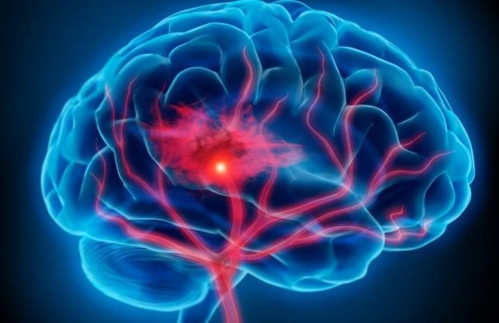 En Argentina, cada 4 minutos una persona sufre un ataque cerebral