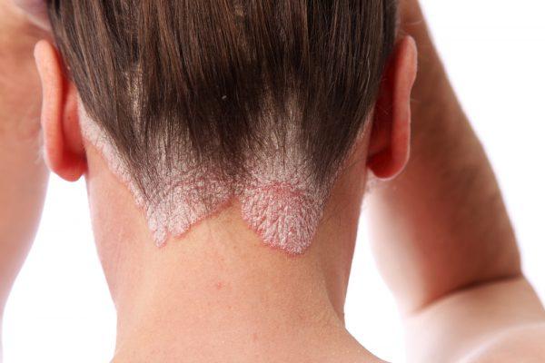 ¿Qué es la psoriasis y cuáles son sus síntomas?