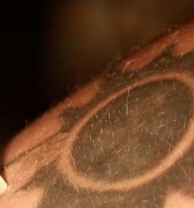 Los tratamientos más efectivos para remover tatuajes