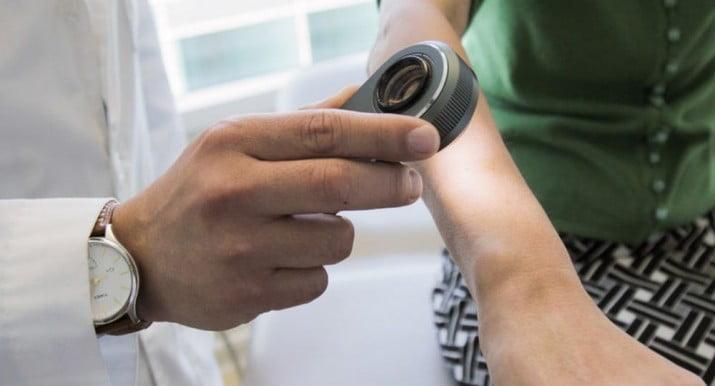 """Desarrollaron un test digital de """"gran precisión"""" en riesgo de melanomas"""