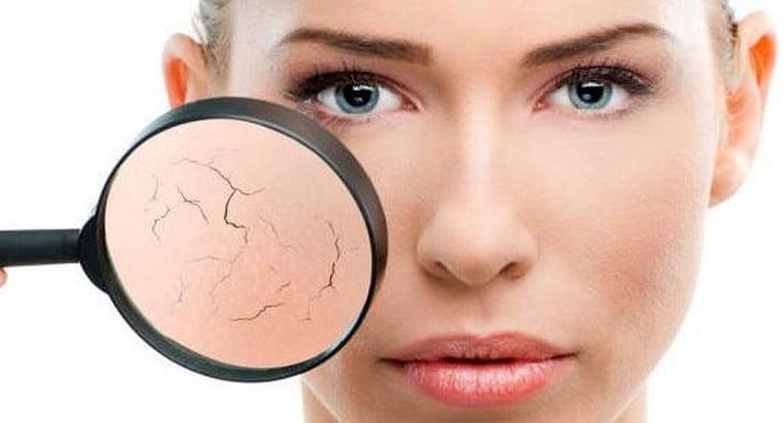¿Por qué la piel se pone opaca en otoño?