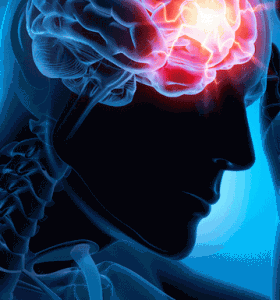 ¿Por qué los analgésicos pueden causar cefalea?
