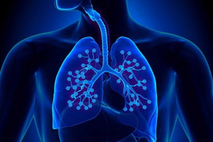 ¿Hipertensión pulmonar?: qué es y cuáles son los síntomas