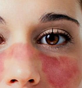 Lupus, ¿por qué es una enfermedad tan difícil de diagnosticar?