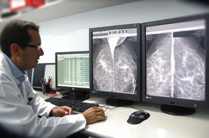 Cáncer de mama: nuevo estudio puede aumentar su detección hasta en un 45%