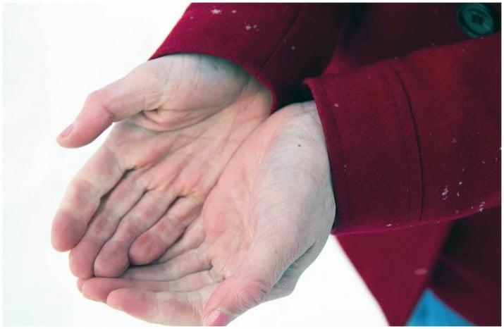 Esclerodermia: ¿Cómo es la enfermedad de las manos azules?