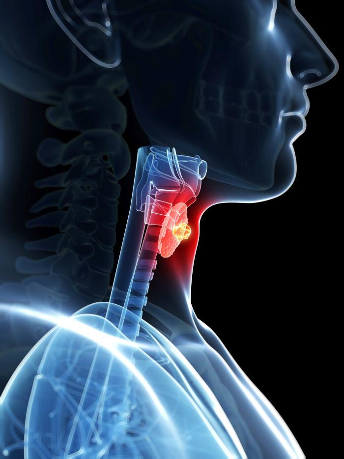 Cáncer de Tiroides: la enfermedad de las hormonas