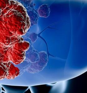 Tumores benignos y malignos: ¿qué son y cómo se tratan?
