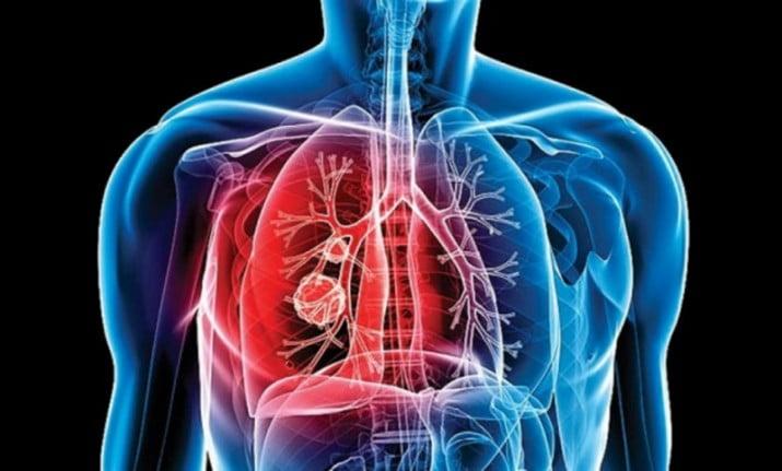 Hoy se conmemora el Día Internacional de la Tuberculosis