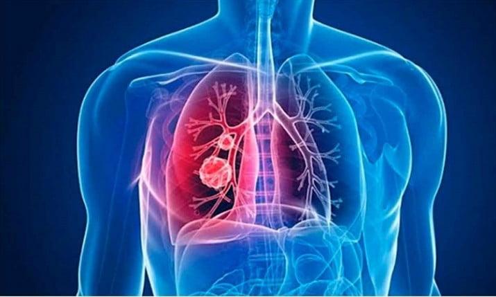 Hipertensión Pulmonar, una enfermedad de difícil diagnóstico