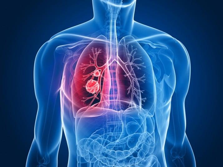 Advierten que la neumonía afectaría a más de 150 mil adultos por año en el país