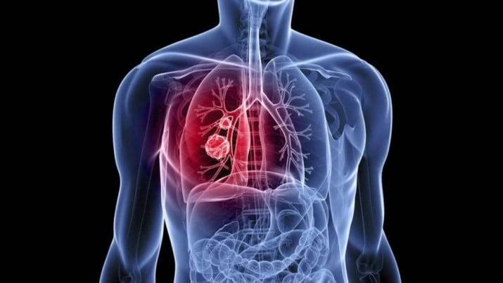 Alerta Neumonía: la importancia de reforzar la prevención