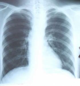 La Tuberculosis afecta a más de 5 mil bonaerenses al año