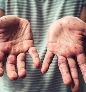 Se registraron 61 casos de sarampión y es el mayor brote desde el año 2000