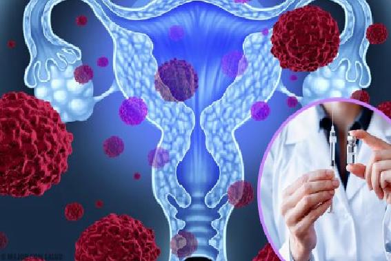 Cáncer de útero: VPH el principal factor de riesgo