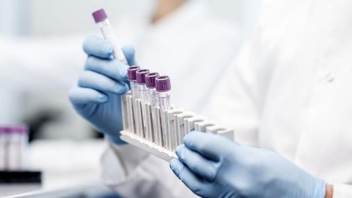 Desarrollan una sustancia que impide que el virus se adhiera a superficies