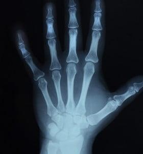 Qué es y cómo se trata la osteoporosis