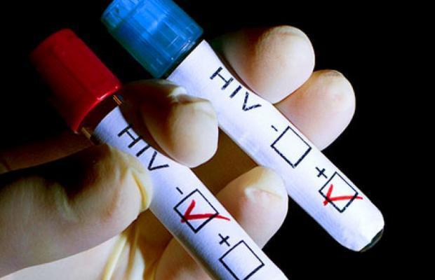 En la Argentina, el 40% de las personas con VIH no lo saben