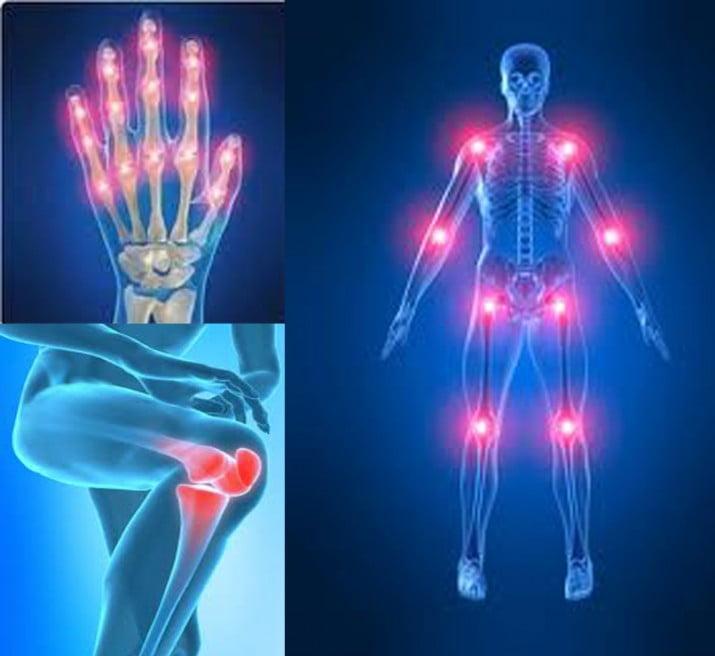Artritis reumatoide: cómo detectarla a tiempo