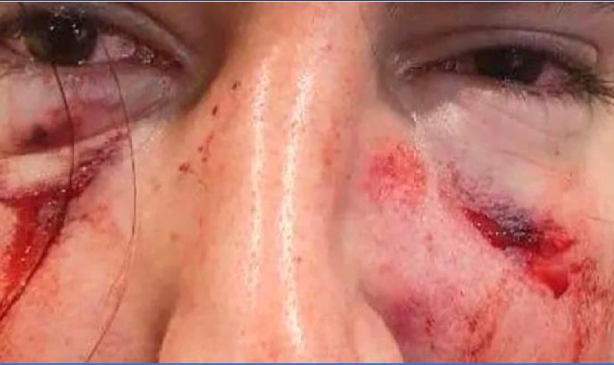 Un grupo de rugbiers golpeó brutalmente a un joven de 18 años